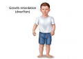 New drug for growth hormone deficiency in children!
